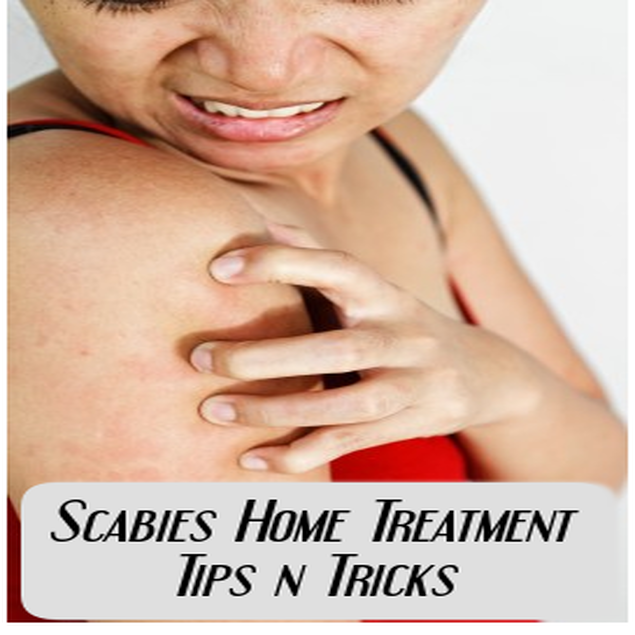 Scabies Home Treatment, an Ebook by Skin Help